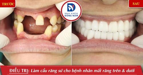 làm cầu răng sứ cho răng hàm trên và dưới