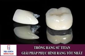 trồng răng sứ titan – giải pháp phục hình răng tốt nhất