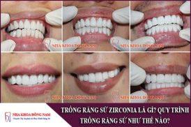 trồng răng sứ zirconia là gì? quy trình trồng răng sứ như thế nào