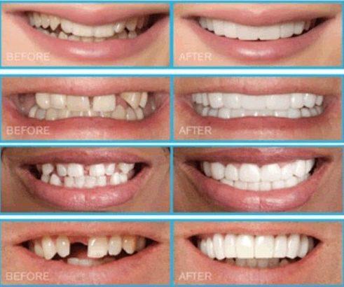 trồng răng sứ zirconia là gì? quy trình trồng răng sứ như thế nào 2