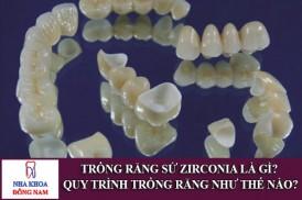 trồng răng sứ zirconia là gì? quy trình trồng răng như thế nào?