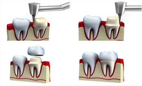 trồng răng sứ zirconia là gì? quy trình trồng răng sứ như thế nào 3