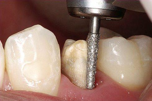trồng răng sứ zirconia là gì? quy trình trồng răng sứ như thế nào 6