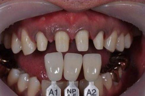 trồng răng sứ zirconia là gì? quy trình trồng răng sứ như thế nào 7