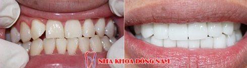 trồng răng sứ zirconia là gì? quy trình trồng răng sứ như thế nào 8