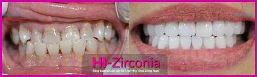 ưu đãi giảm giá răng sứ hi-zirconia 2