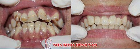 vì sao nên bọc răng sứ cho răng đã lấy tủy 5