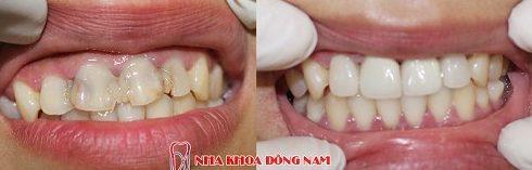 vì sao nên bọc răng sứ cho răng đã lấy tủy 7