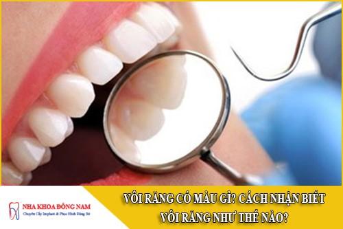 vôi răng có màu gì? cách nhận biết vôi răng như thế nào