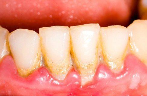 vôi răng có màu gì? cách nhận biết vôi răng như thế nào 1