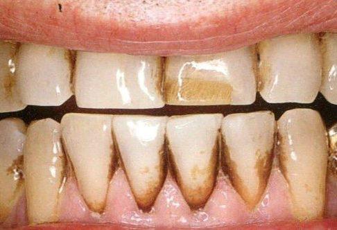 vôi răng có màu gì? cách nhận biết vôi răng như thế nào 2
