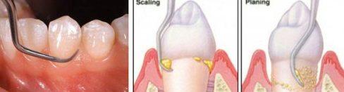vôi răng có màu gì? cách nhận biết vôi răng như thế nào 4