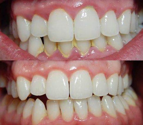 vôi răng có màu gì? cách nhận biết vôi răng như thế nào 5