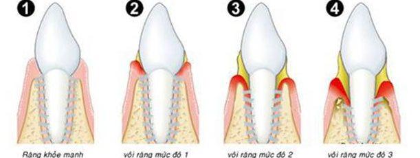 vôi răng có tự bong ra được không 2