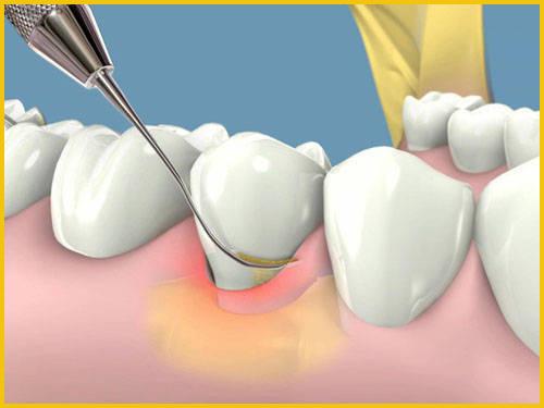 vôi răng có tự bong ra được không 3