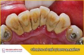 vôi răng có thể tự bong ra không