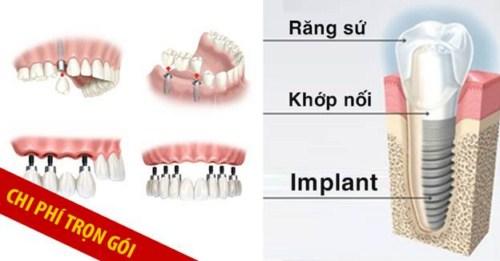 Cấy Ghép Màng Xương Trong Implant Là Gì 11