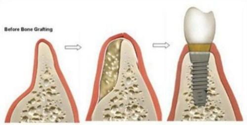 Cấy Ghép Màng Xương Trong Implant Là Gì 3