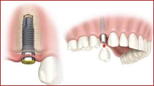 Cấy ghép implant mỹ có tốt không 4