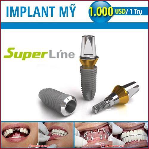 bảng giá cấy ghép implant mỹ là bao nhiêu