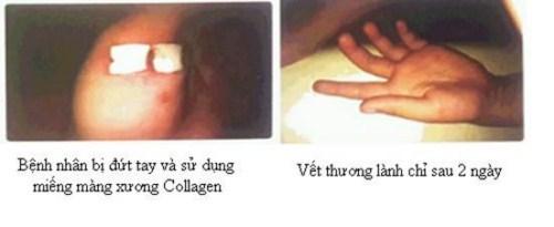 Vì Sao Phải Cấy Ghép Màng Xương Trong Implant_4