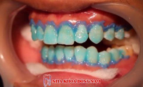 ăn mía có làm trắng răng không 4