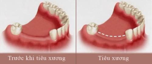 hiên tượng tiêu xương khi mất răng