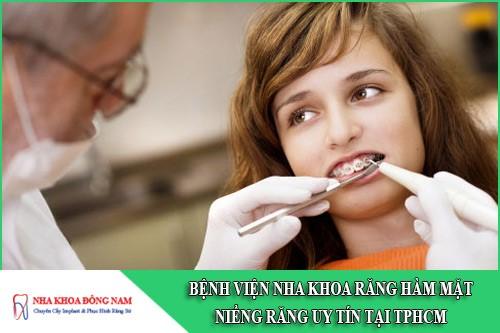 bệnh viện nha khoa răng hàm mặt niềng răng uy tín tại tphcm