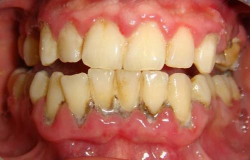 sưng nướu răng có mủ