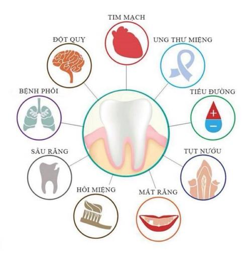 tác hại của sưng nướu răng có mủ