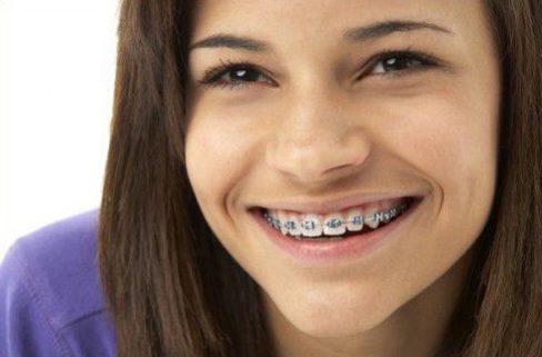 cách mang niềng răng nhưng vẫn tự tin khi giao tiếp 1