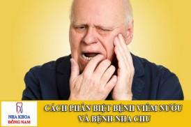 cách phân biệt bệnh viêm nướu và bệnh nha chu