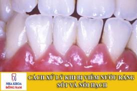 cách xử lý khi bị viêm nướu răng, sốt và nổi hạch