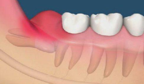 cách xử lý viêm nướu răng khôn khi 1mang thai