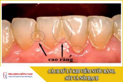 cách xử lý khi bị viêm nướu răng sốt và nổi hạch