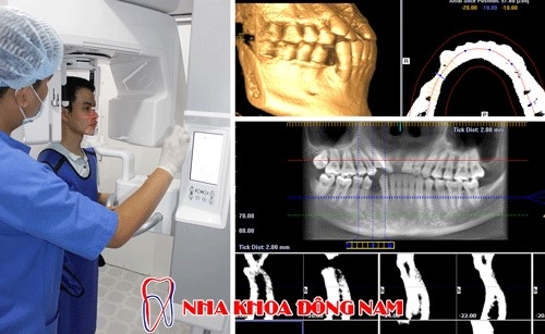 chụp phim ct kiểm tra tình trạng răng và xương hàm