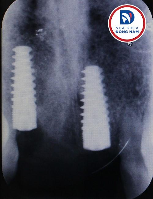 chụp phim kiểm tra trụ implant