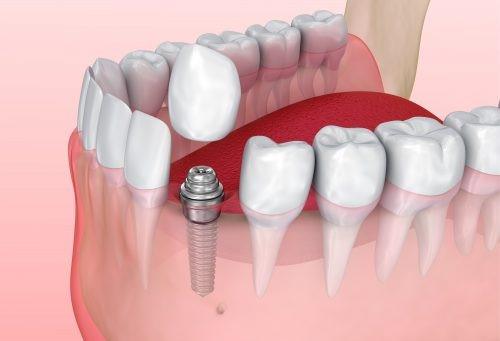 phục hình sứ trên implant