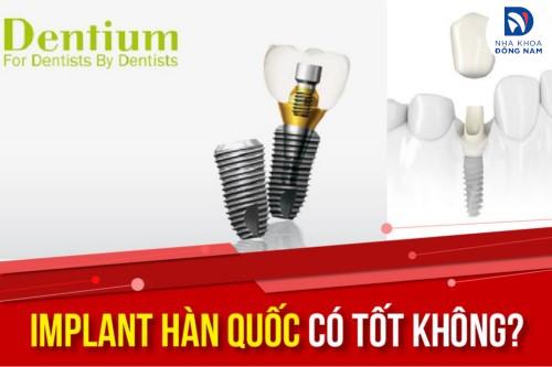 Cấy ghép Implant hàn quốc có tốt không? Giá bao nhiêu?