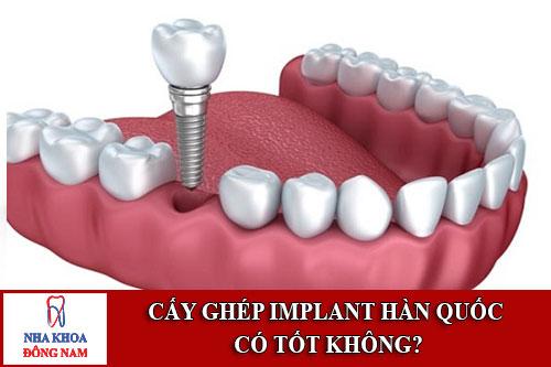 Cấy Ghép Implant Hàn Quốc Có Tốt Không