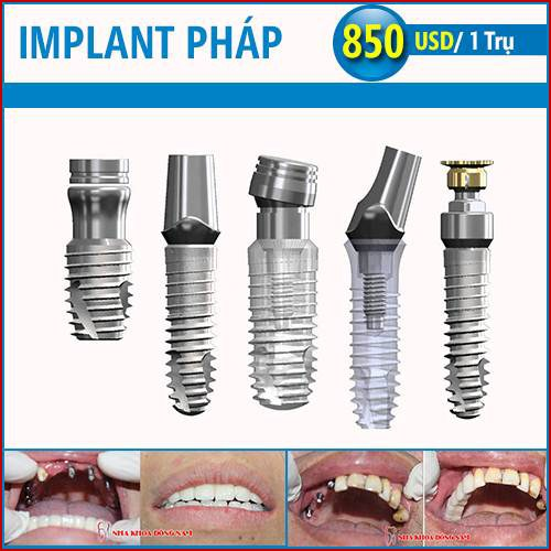 Cấy ghép implant pháp có tốt không 10