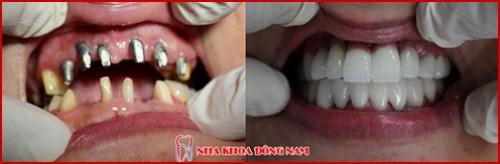 Cấy ghép implant pháp có tốt không 3