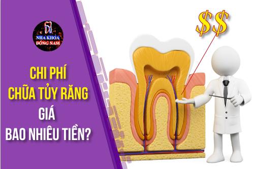 Chi phí điều trị tủy răng giá bao nhiêu