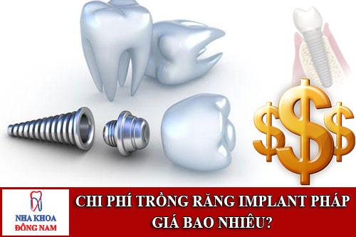 chi phí trồng răng implant pháp giá bao nhiêu