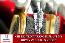 chi phí trồng răng implant mỹ hiện nay giá bao nhiêu
