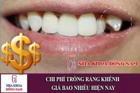 chi phí trồng răng khểnh giá bao nhiêu hiện nay