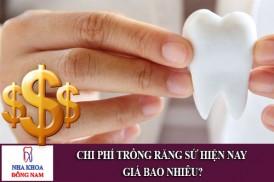 chi phí trồng răng sứ giá bao nhiêu tiền