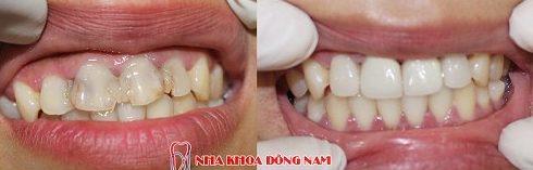 chữa tủy răng hết bao nhiêu tiền 5