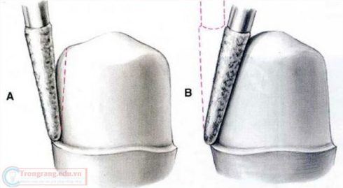 nguyên nhân dẫn đến đau răng khi trồng răng sứ 1