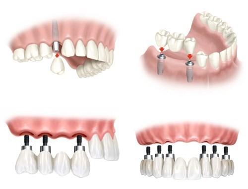 các hình thức trồng răng implant